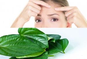 Menghilangkan jerawat dengan daun sirih